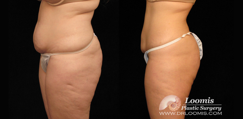 Nonsurgical body sculpting