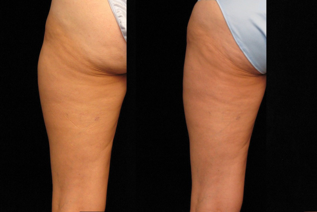Outer thigh fat reduction