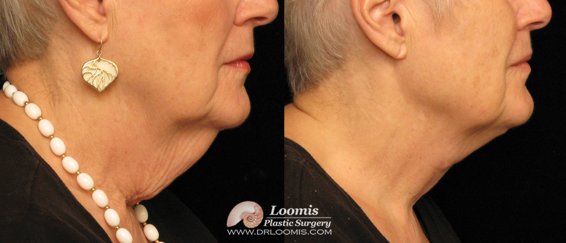 Neck z-plasty skin excision by Dr. Loomis (not a guarantee of results)