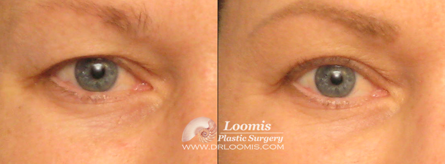 Upper eyelid skin excision by Dr. Loomis under local in the office (not a guarantee of results).