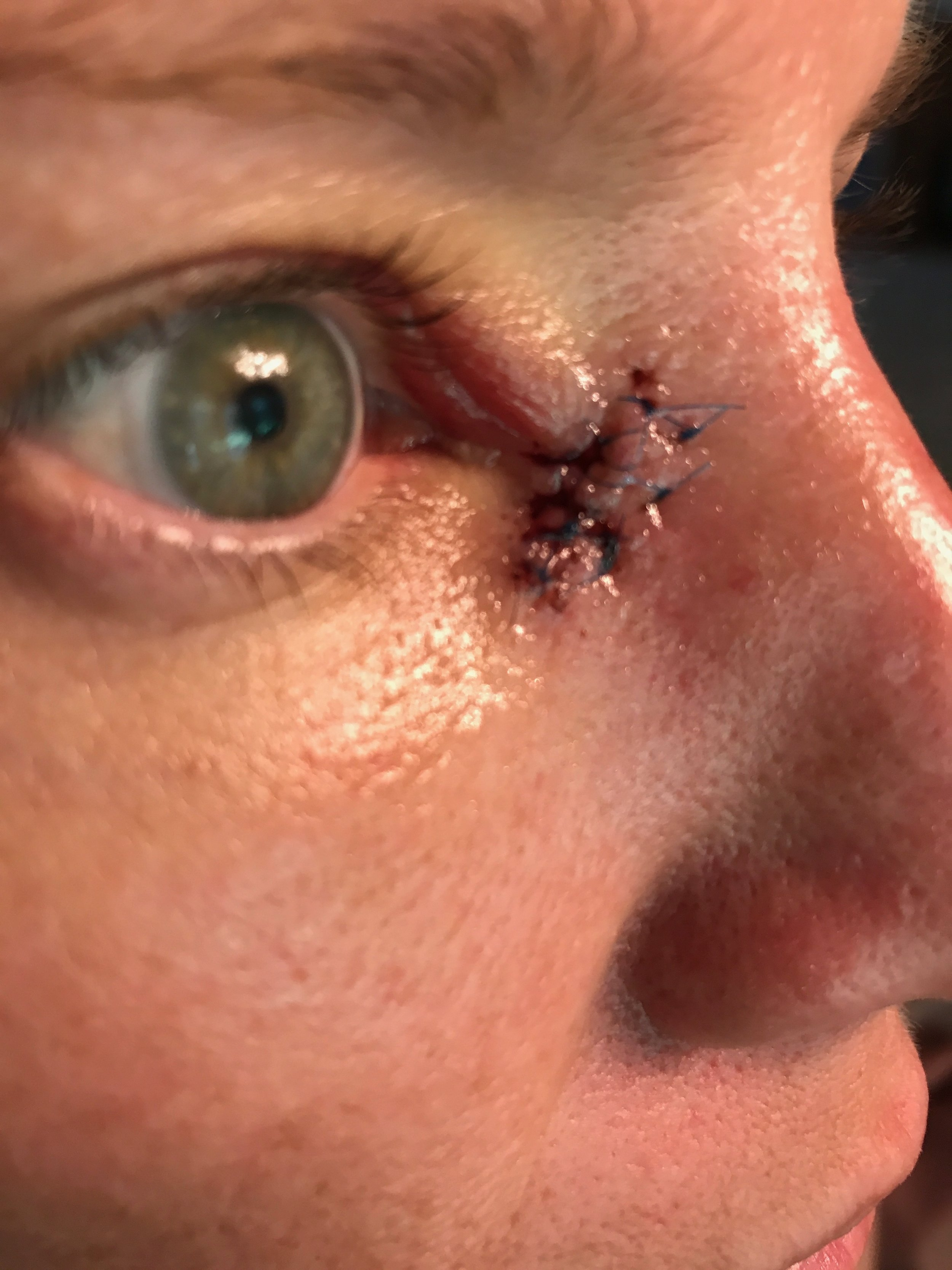 Oculoplastic and Reconstructive Surgery