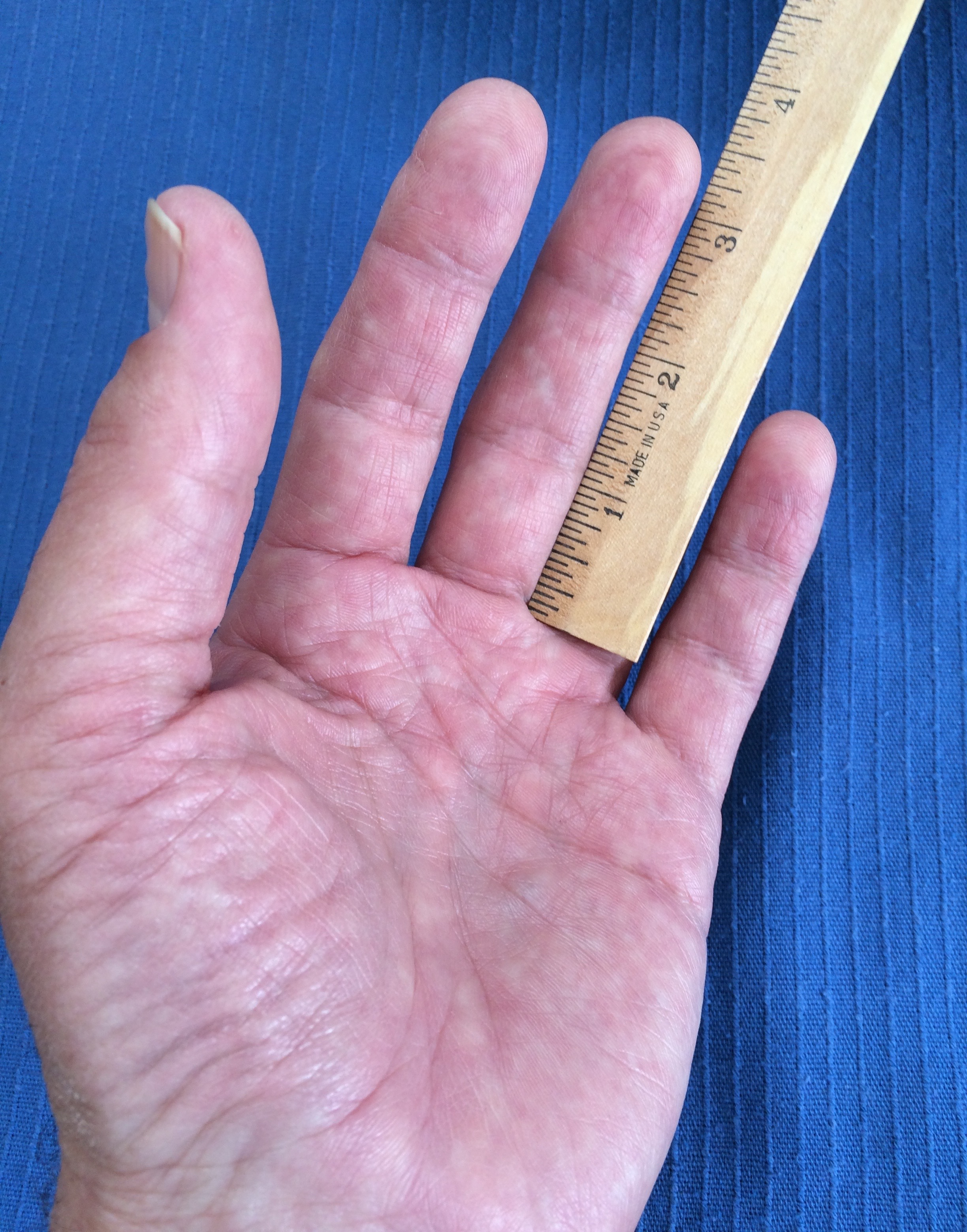 How to measure for the correct size. This hand would need size L since the fingertip is reading 3-5/8 inches (9.21 cm)