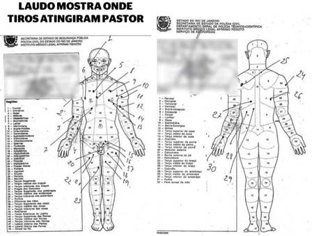 Graphic from Anderson's autopsy indicating the location of bullet wounds.