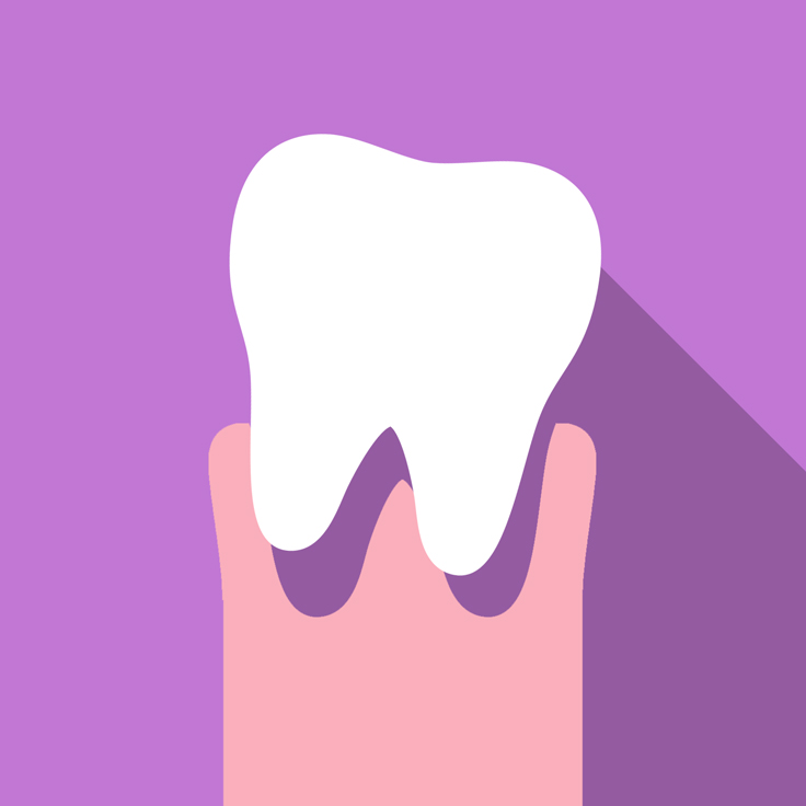 Dislodged or Knocked Out Teeth