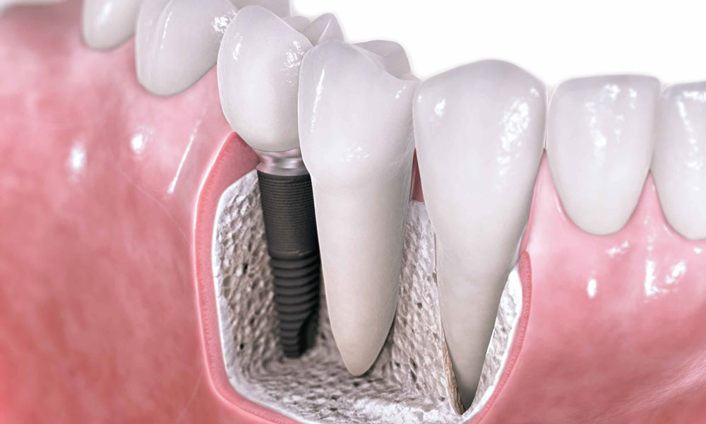 Dental implants have become a popular treatment.