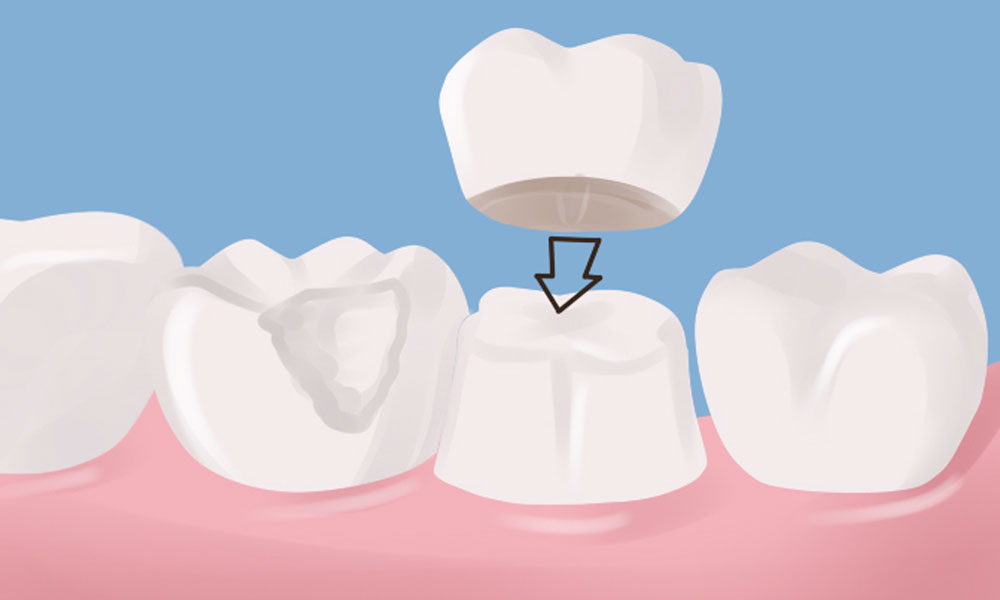 An old favourite for dentists, a dental crown.