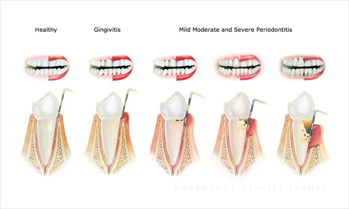© Emergency Dentist Sydney Why Ignoring Bleeding Gums Is A Big Mistake Gum Disease.jpg