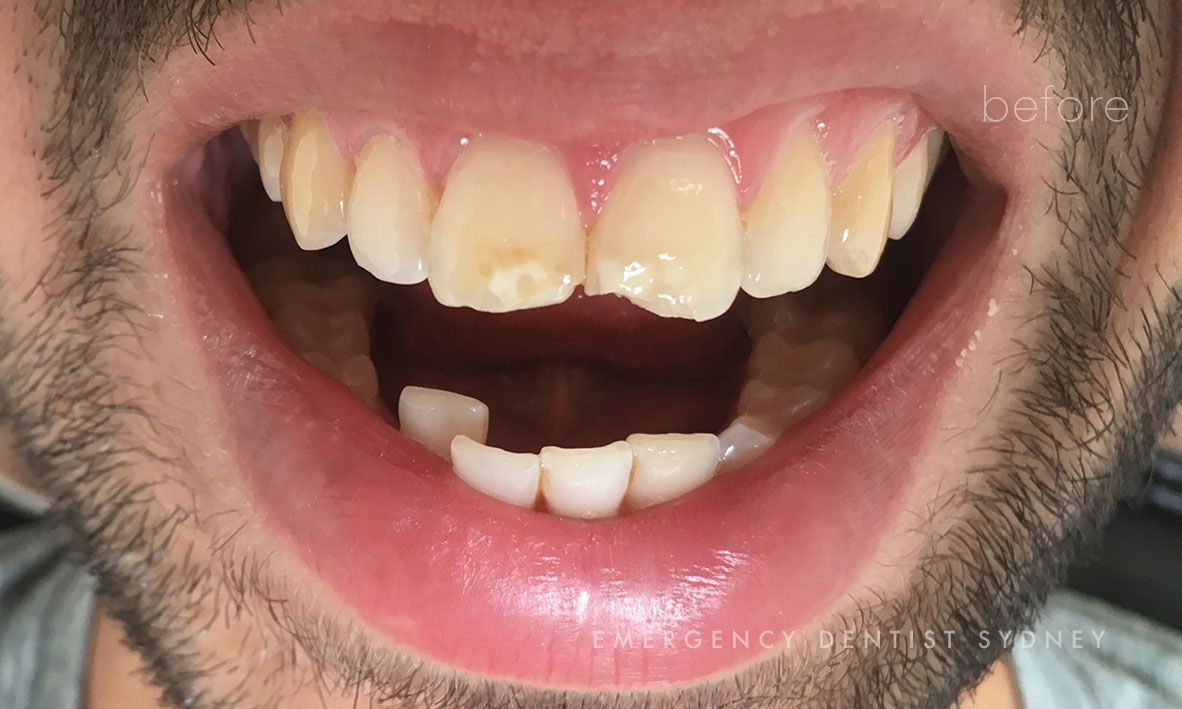 Chipped teeth treated with Composite bonding