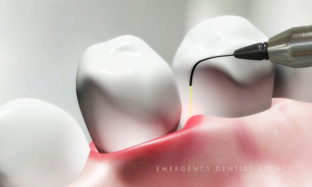 © Emergency Dentist Sydney I Haven't Been To The Dentist In 10 Years Dental Treatment.jpg