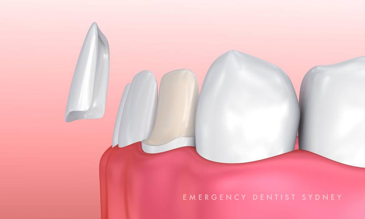 © Emergency Dentist Sydney Follow Up 04.jpg