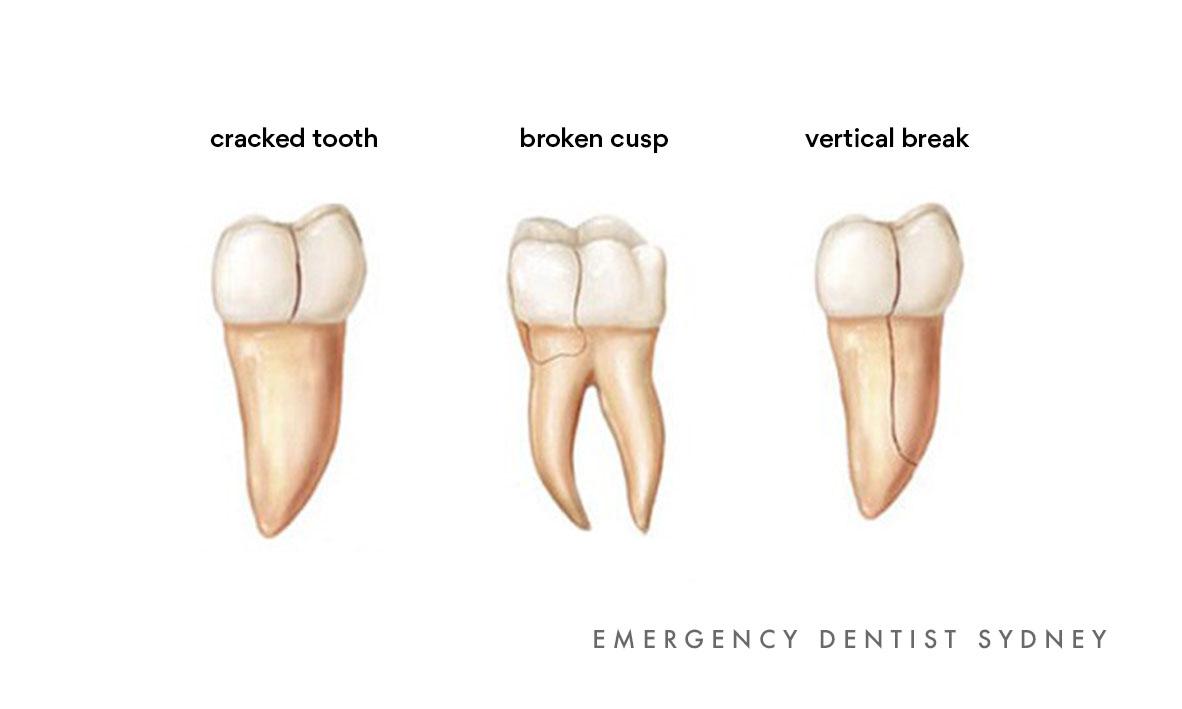 © Emergency Dentist Sydney Tooth Breaks 04.jpg