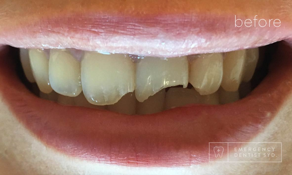 © Emergency Dentist Sydney Smile Gallery Before and After Teeth 11-Before.jpg
