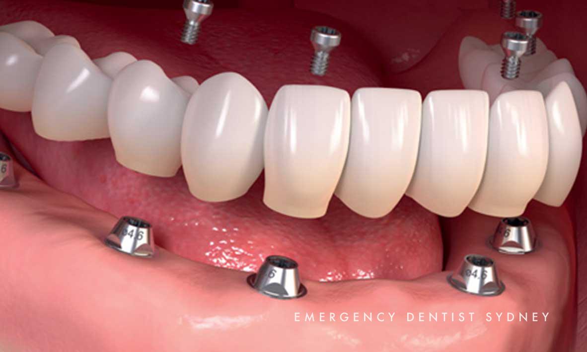 © Emergency Dentist Sydney Dental Implants 07.jpg