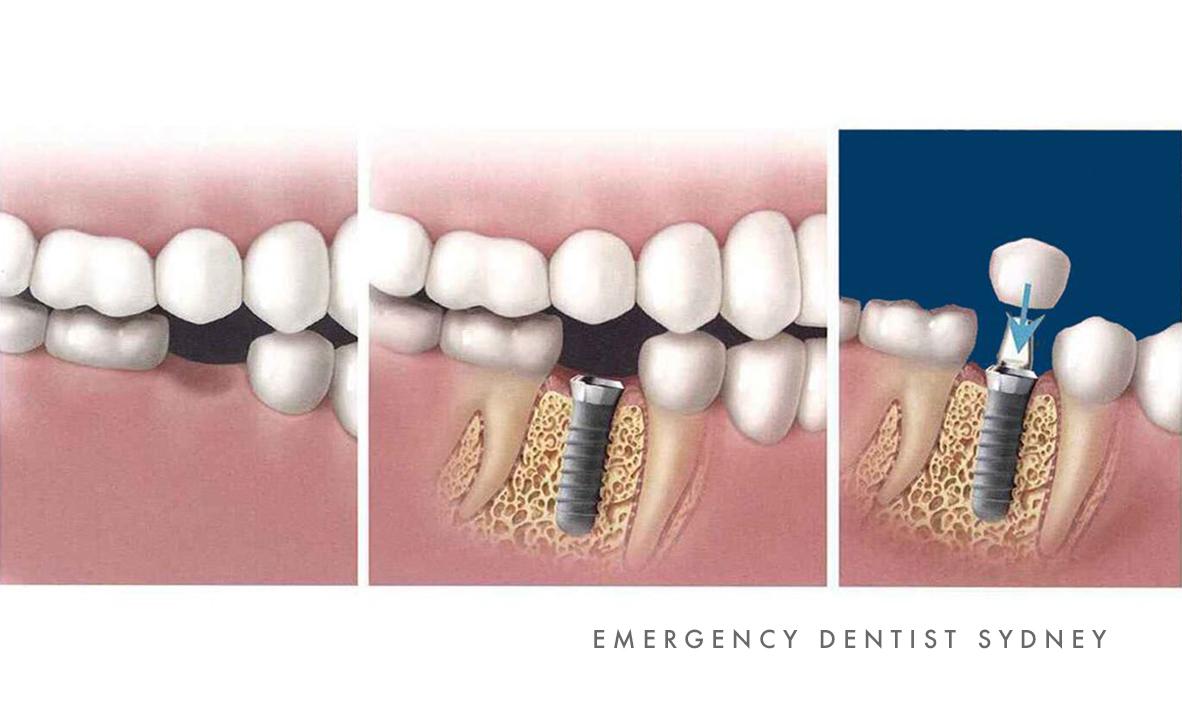 © Emergency Dentist Sydney Dental Implants 03.jpg