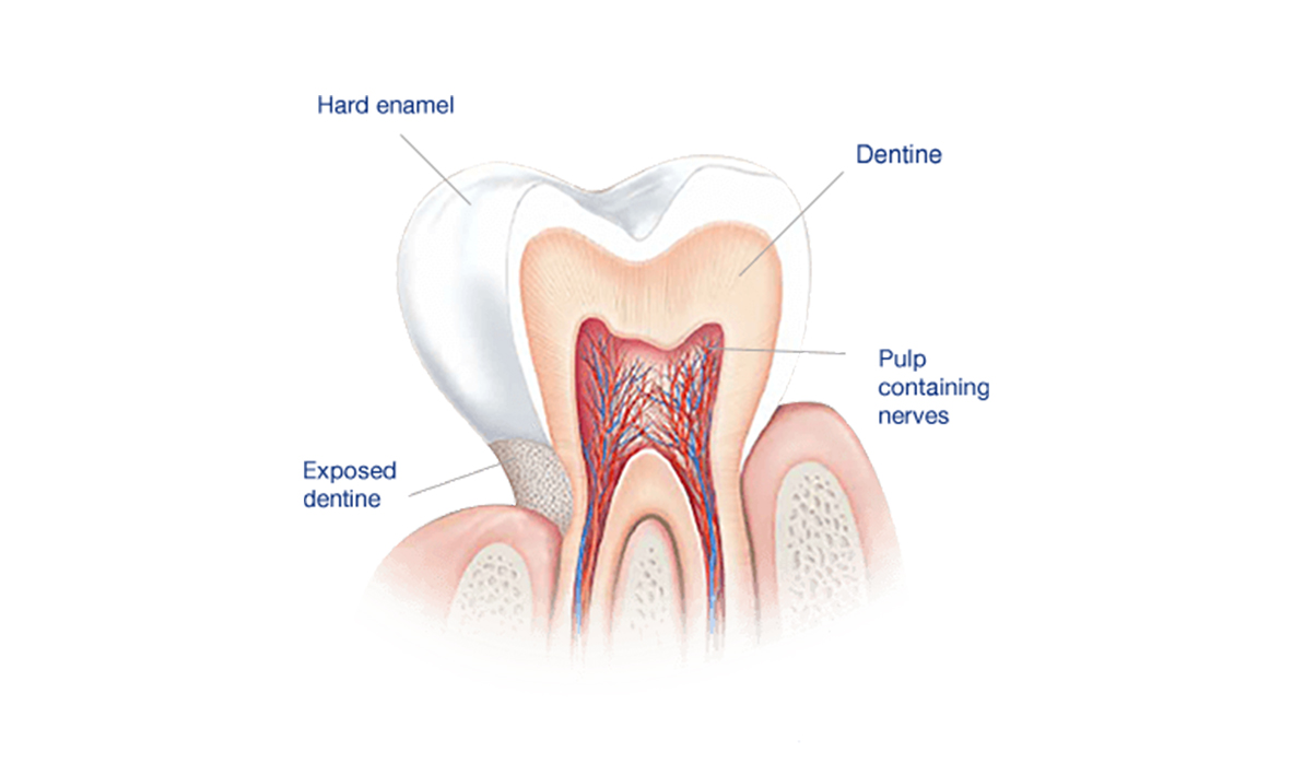 © Emergency Dentist Sydney Tooth Enamel 04.jpg