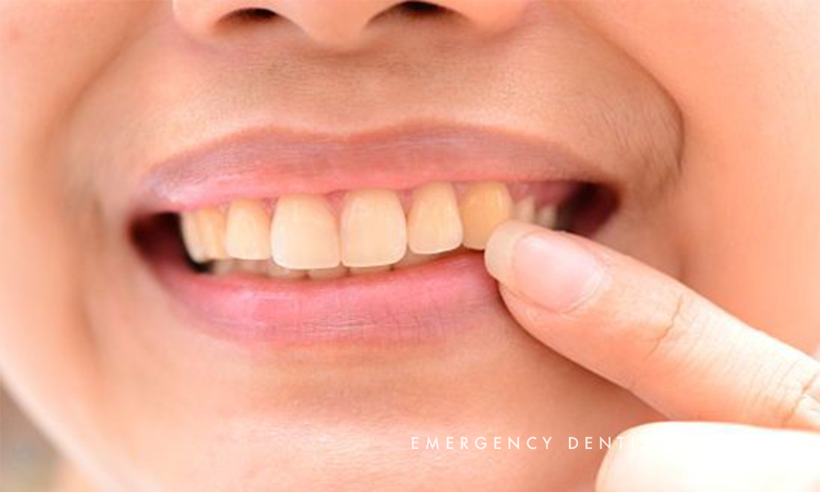 © Emergency Dentist Sydney Tooth Enamel 05.jpg