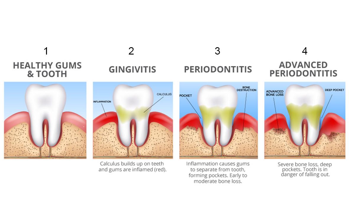 © Emergency Dentist Sydney Gingivitis 03.jpg