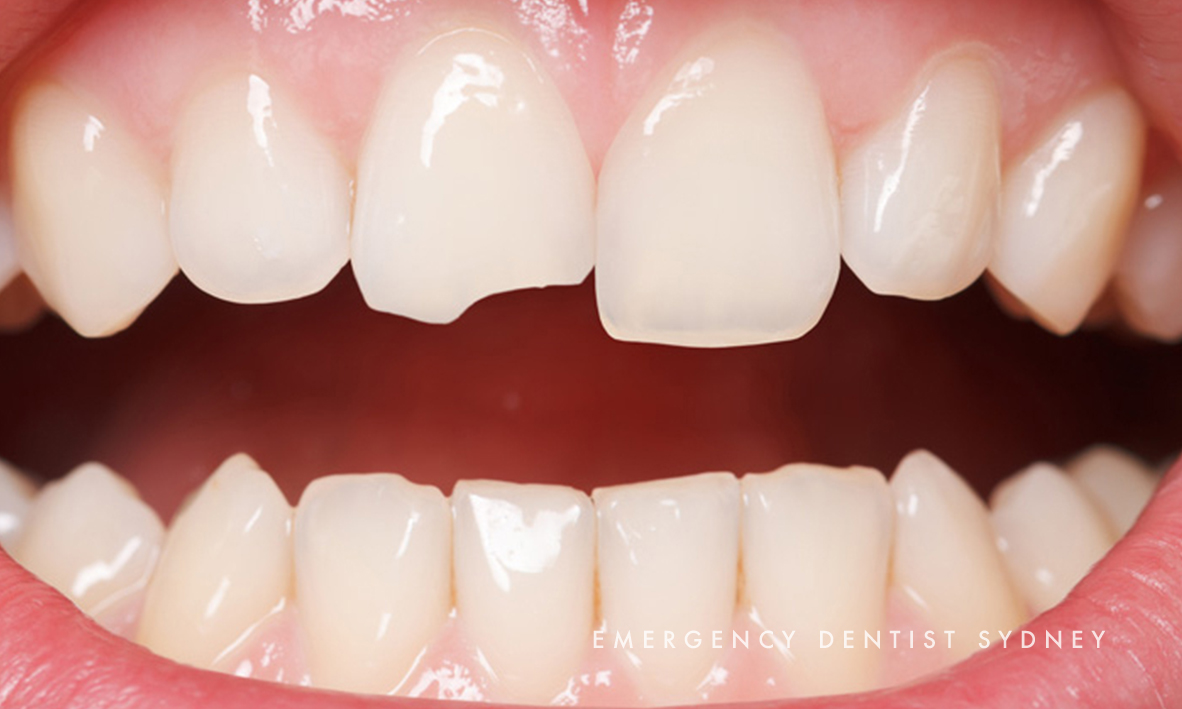 © Emergency Dentist Sydney Our Smile Makeovers 03.jpg