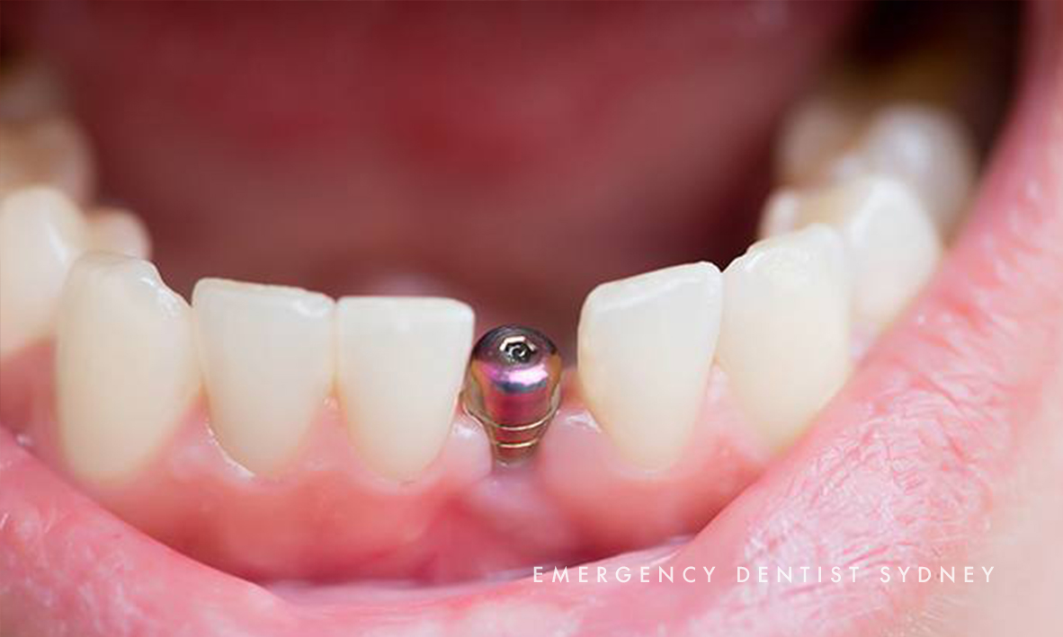 © Emergency Dentist Sydney Our Smile Makeovers 04.jpg