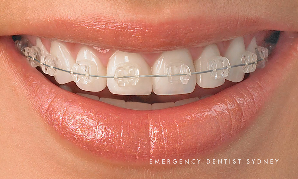 © Emergency Dentist Sydney Our Smile Makeovers 06.jpg