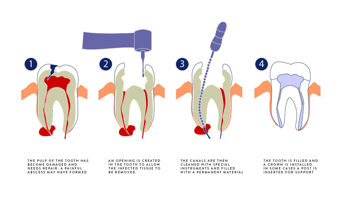 © Emergency Dentist Sydney Emergency Root Canal 03.jpg