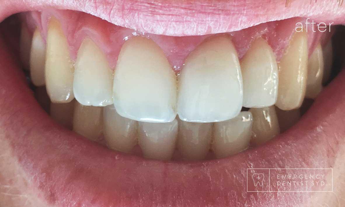 After: Dental Bonding