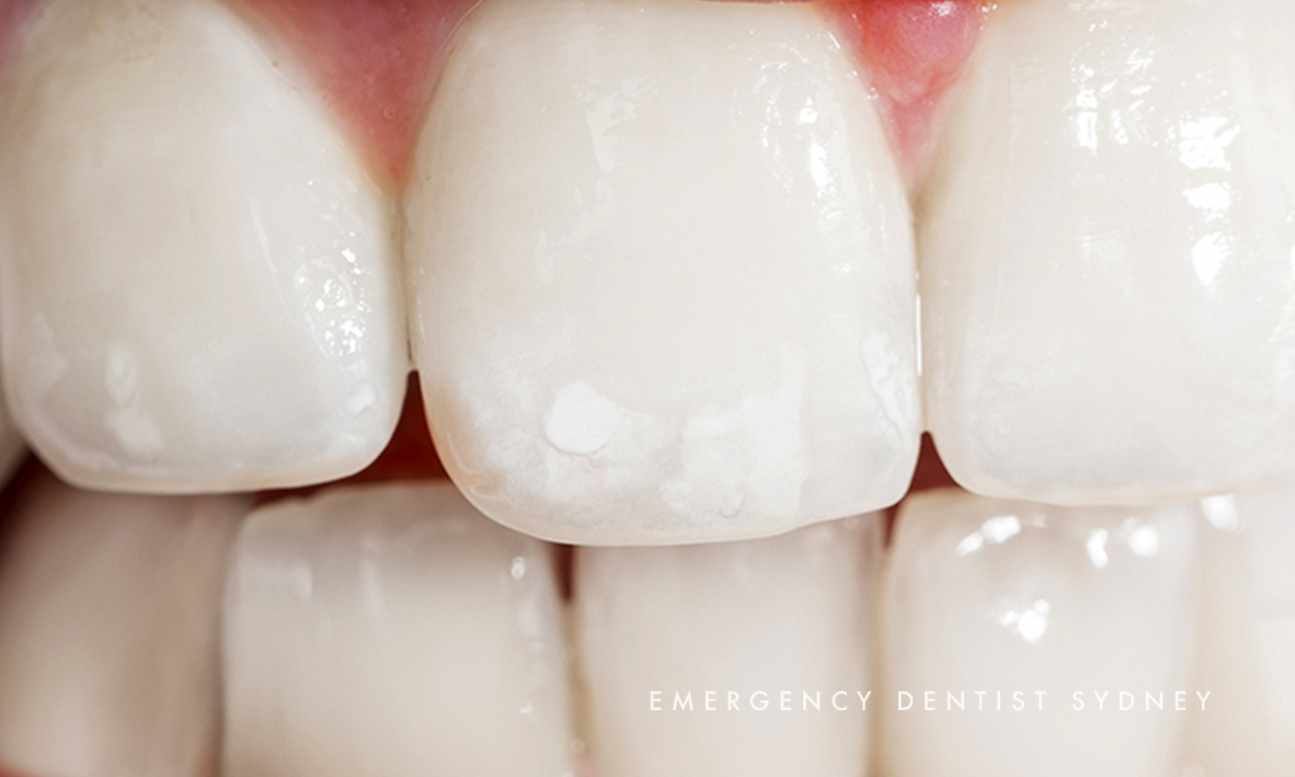 © Emergency Dentist Sydney Tooth Enamel Loss 03.jpg