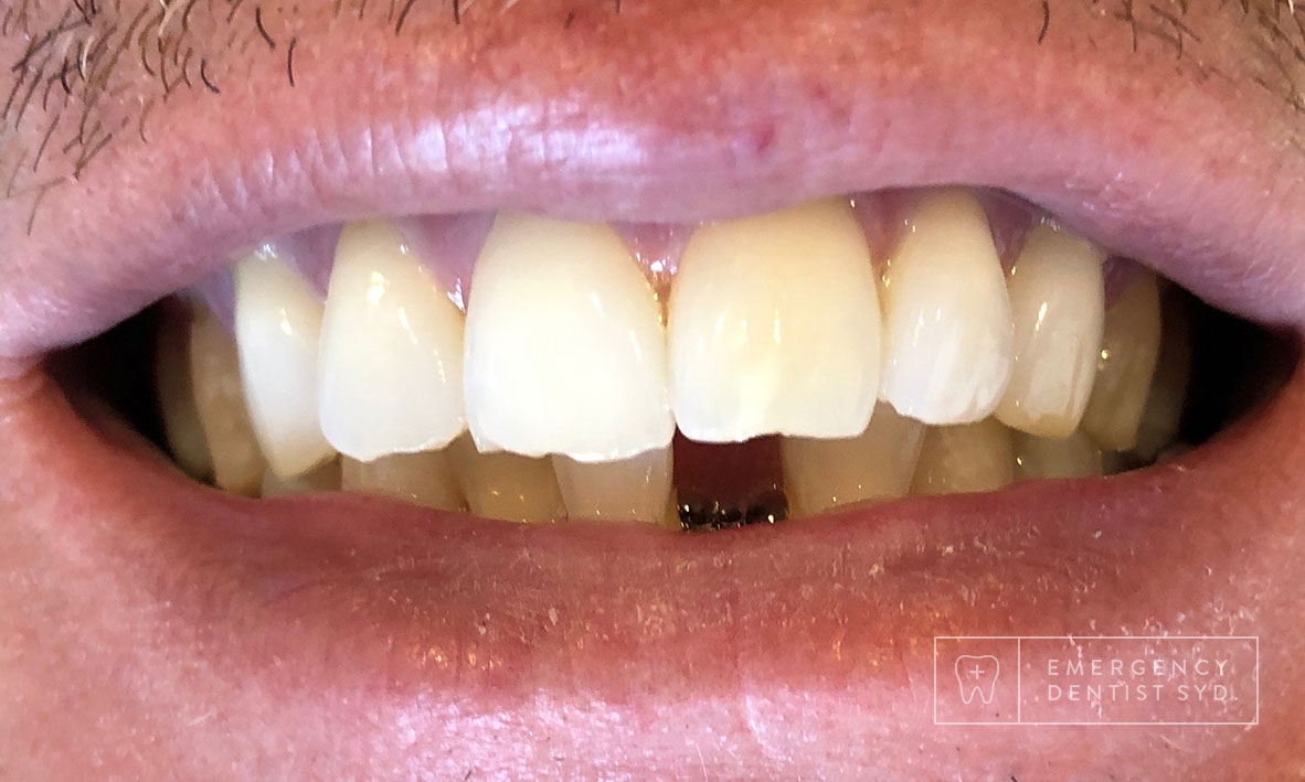 Treatment: Dental Implant - Single Tooth