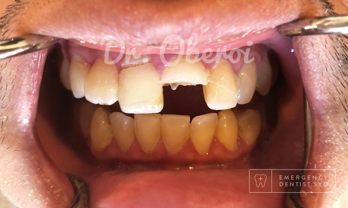 Treatment: Dental Implant and Bonding