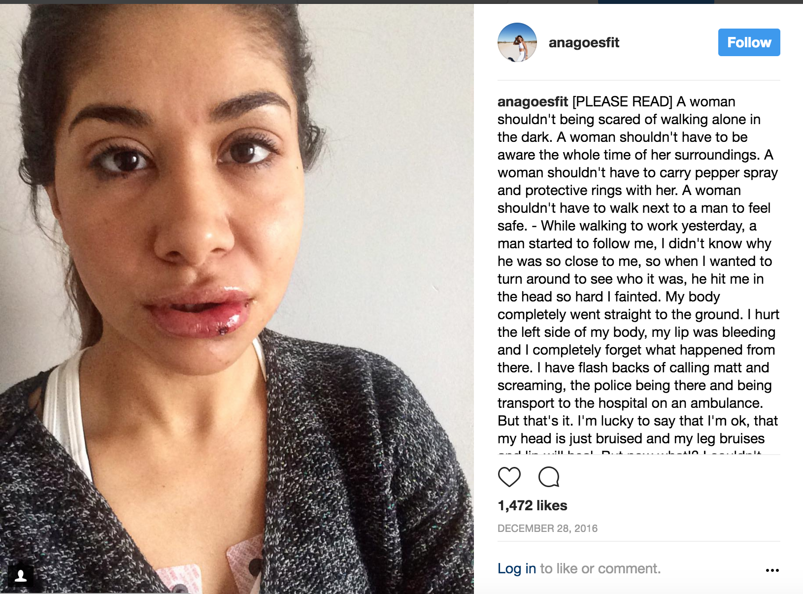 The post Ana shared on her Instagram account to spread awareness about her assault.