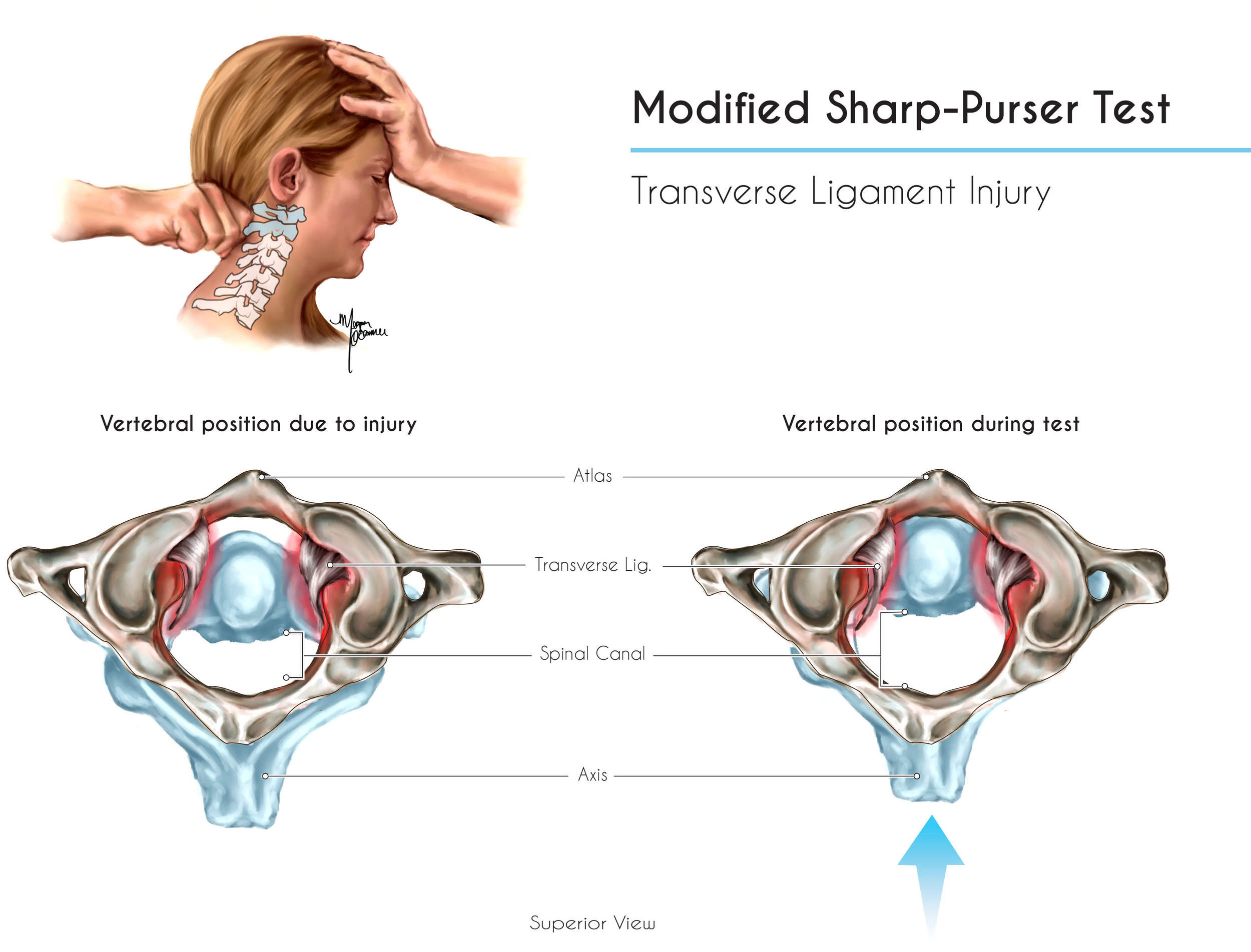 Modified Sharp-Purser Test - Learn More