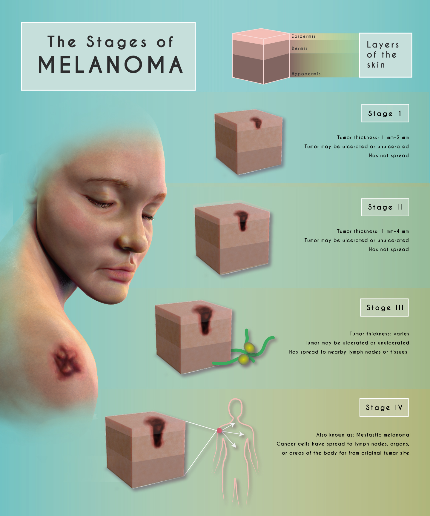 The Stages of Melanoma - Learn More