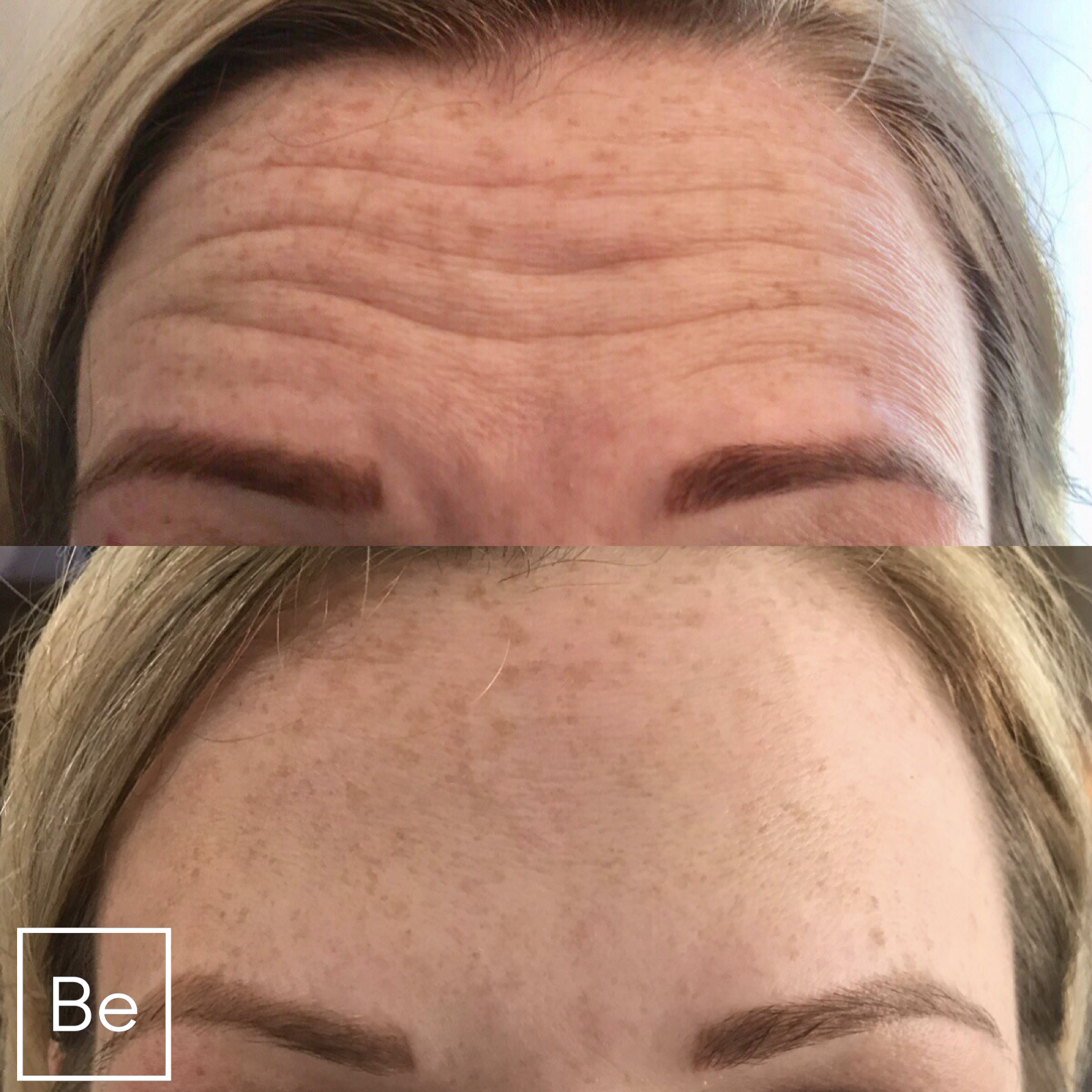 BOTOX INJECTIONS - Bare Element