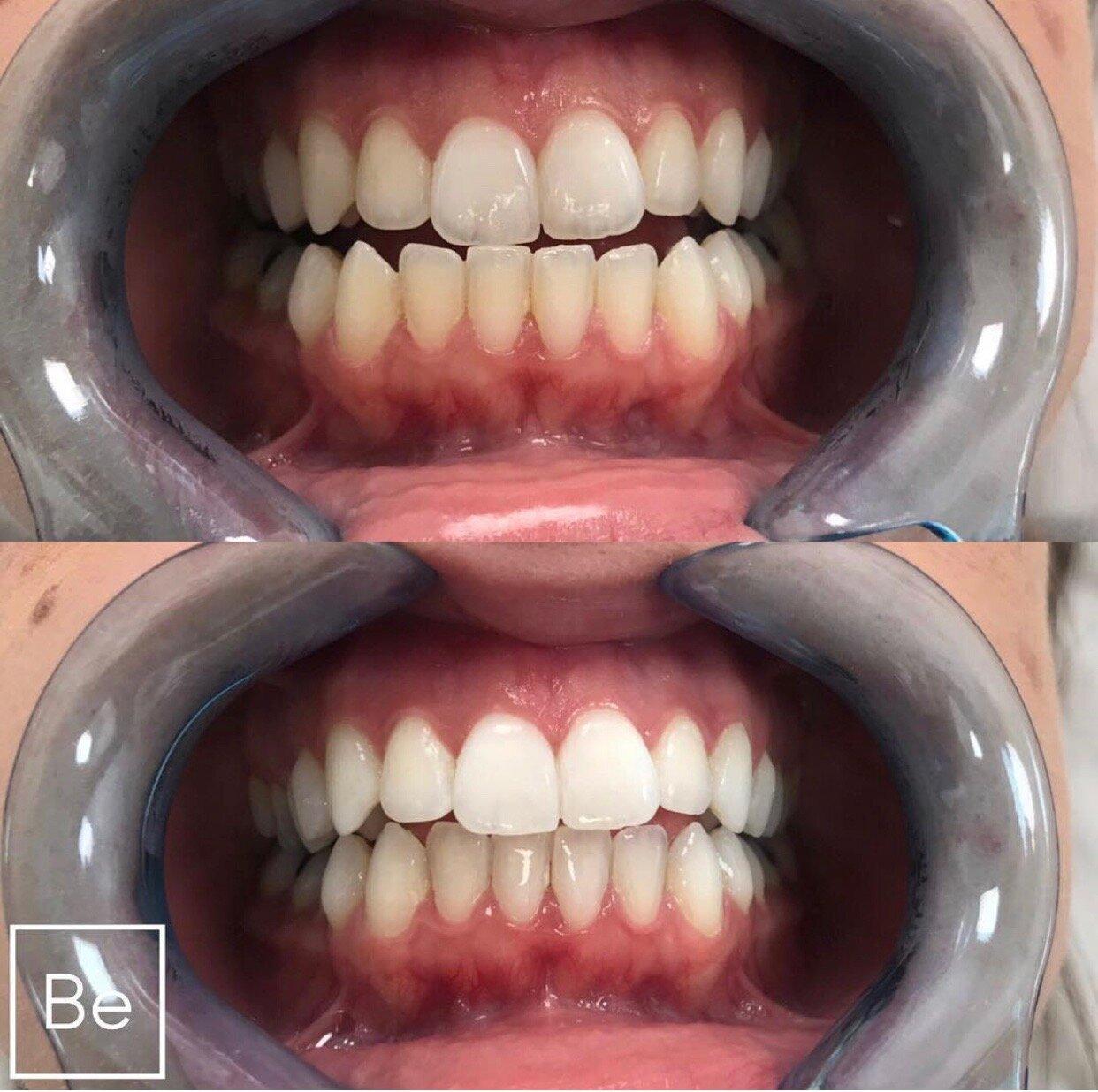 Professional Teeth Whitening Bare Element