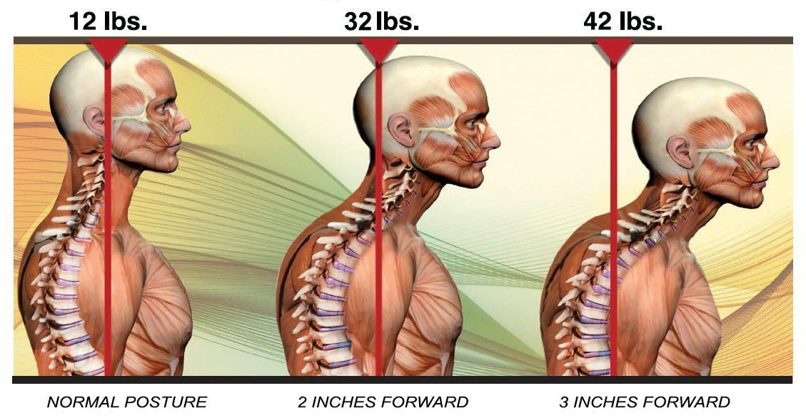 posture correction postural neck pain chiropractic chiropractor burke.jpg