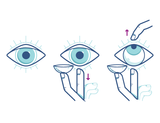Acuvue_eyeopeningtechnique_Illustration.png