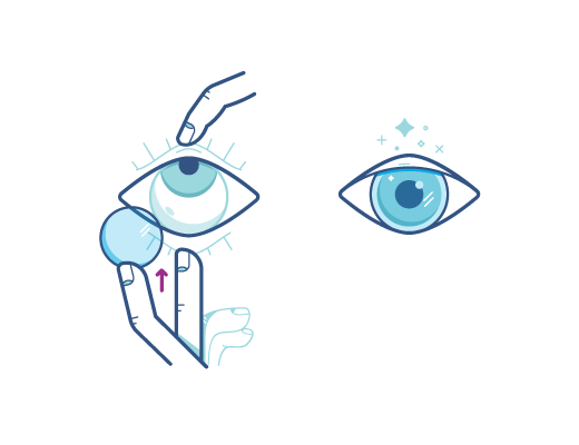 Acuvue_placementtechnique_Illustration.png
