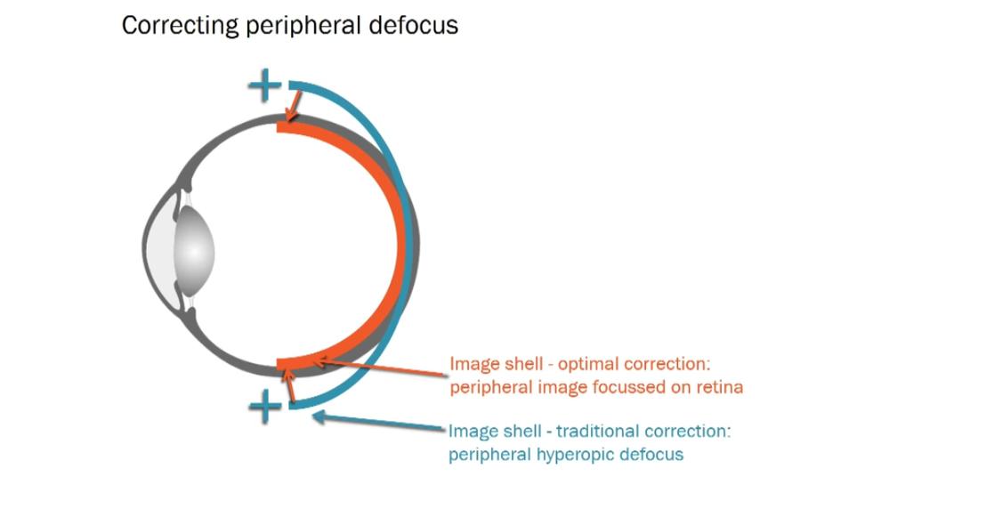 myopia pic 4.png