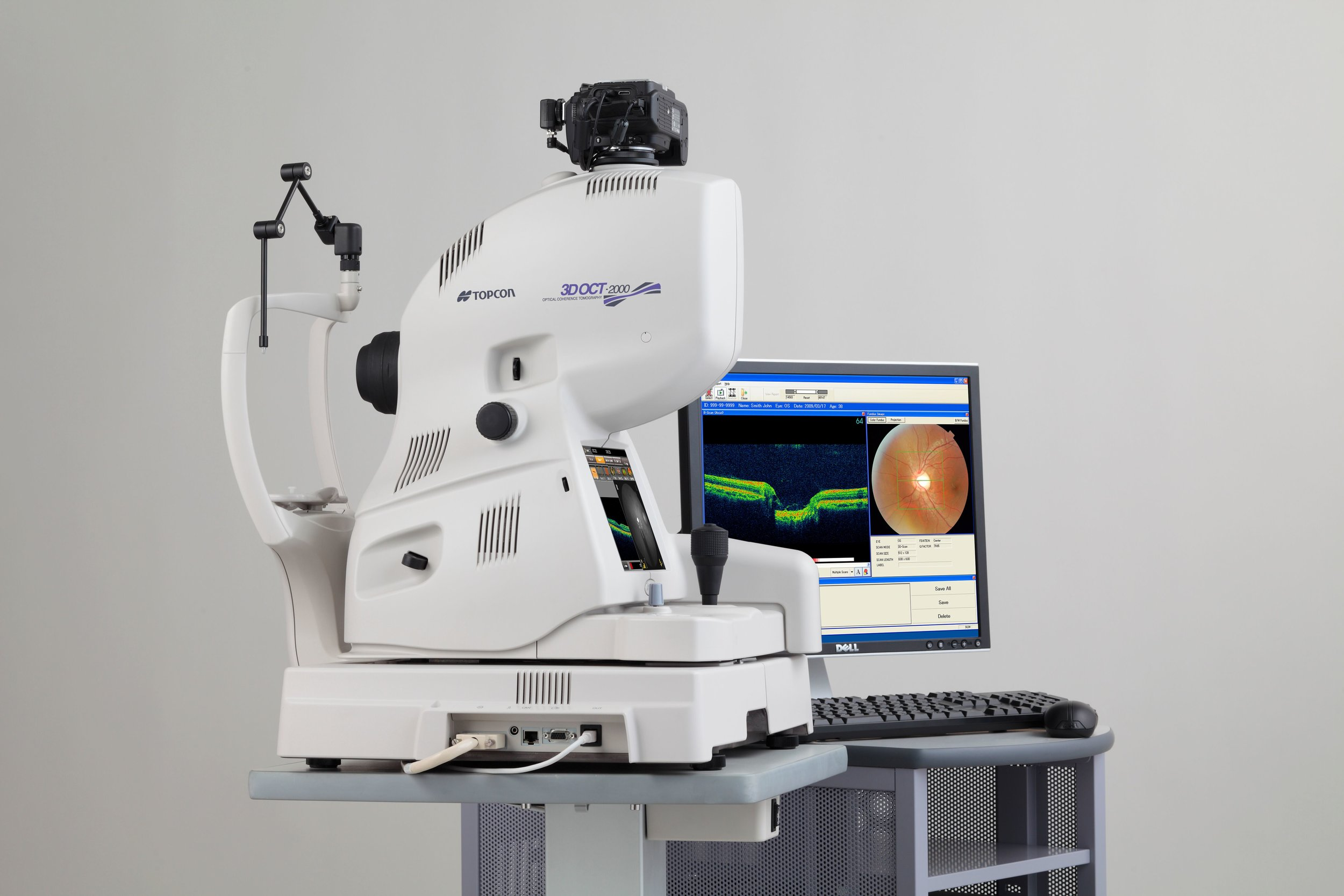3D OCT Screening - Did you know that 3D OCT screening of your eyes can diagnose potentially serious conditions that can affect your eyesight and overall well-being?We have just invested in a top of the range piece of diagnostic equipment that can detect a number of common eye conditions, such as glaucoma, AMD and diabetic retinopathy, during a routine eye test.Call us today for more information on 09064 76111