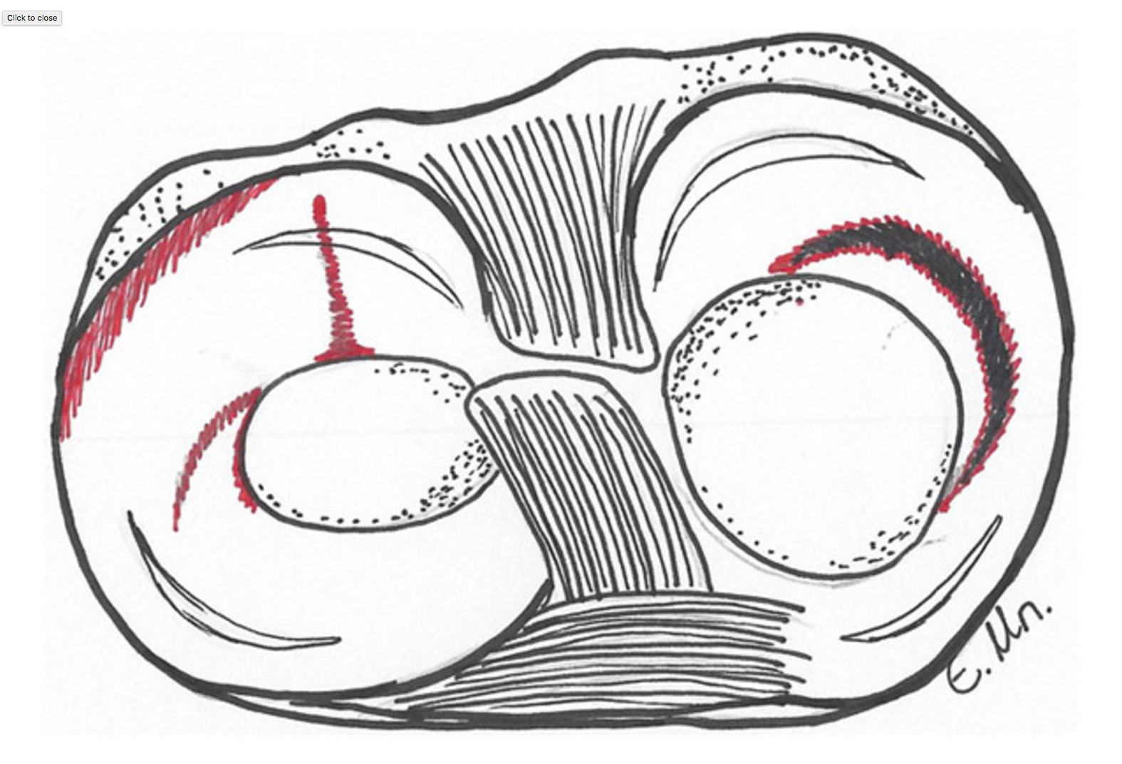 The meniscus can be torn in different places, some examples are shown in red in this picture.