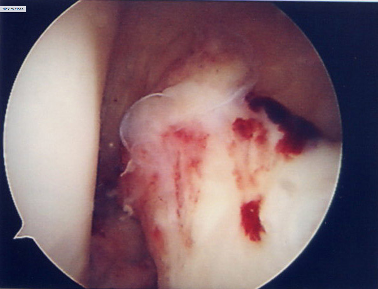 Images from arthroscopy showing torn ACL stump