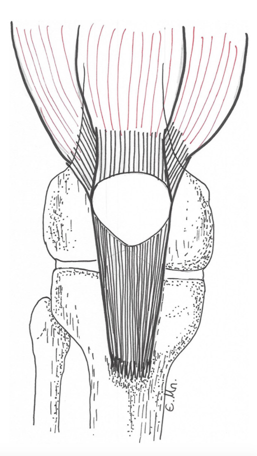 Kneecap dislocation occurs when the patella moves completely outside of its groove.