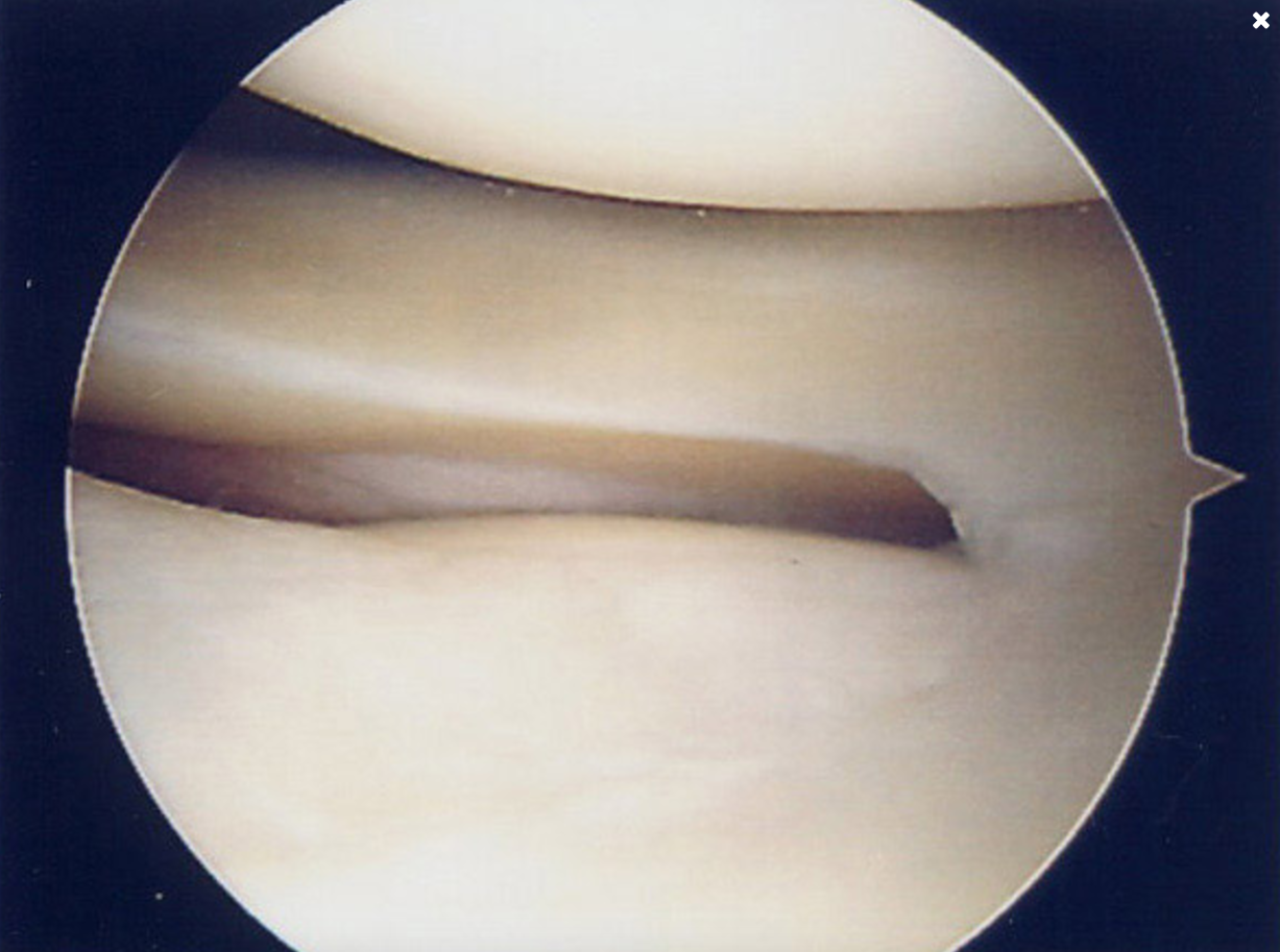 Arthroscopy images showing healthy lateral compartment.