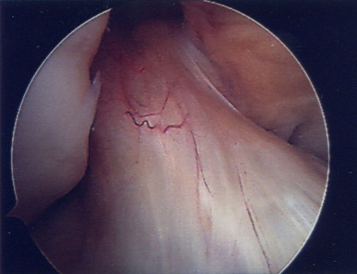 Arthroscopy images showing intact ACL.