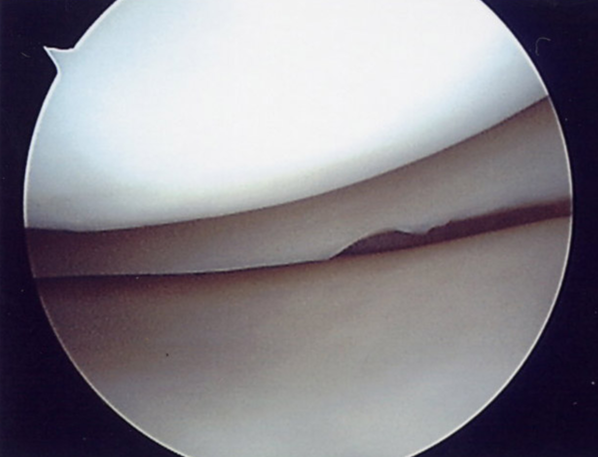 Arthroscopy images showing healthy medial compartment.
