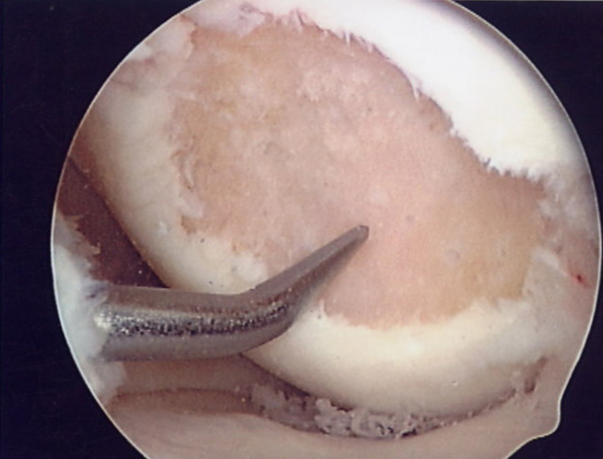 Arthroscopy images pre micro-fracture.