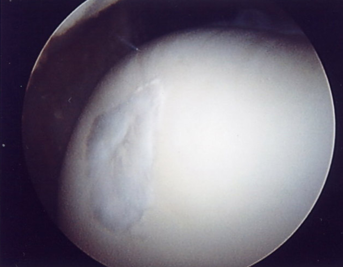 Arthroscopy images following successful micro-fracture.