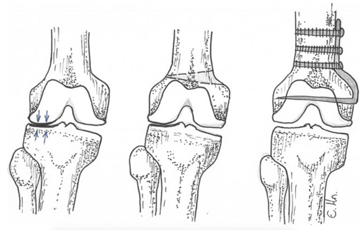 These pictures show before and after a distal femoral osteotomy, where the femur has been refashioned above the knee joint to relieve pressure on the outer (lateral) aspect of the knee.