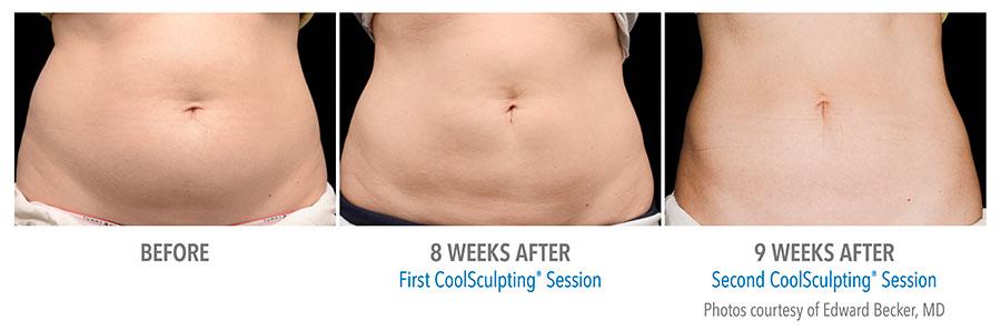 CoolScuplting - Chestnut Hill Plastic Surgery & Aesthetics 4.jpg