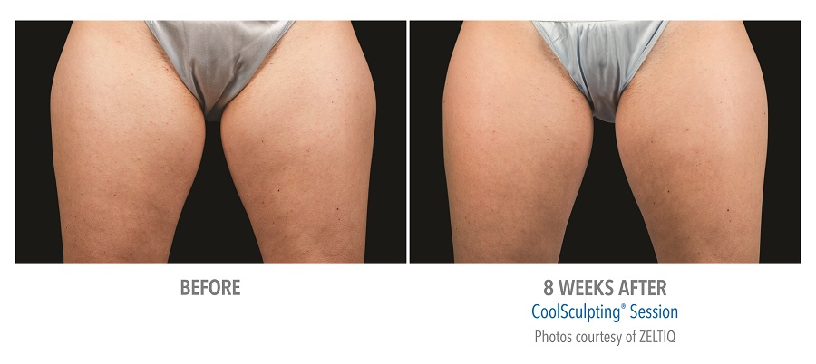 CoolScuplting Thigh - Chestnut Hill Plastic Surgery & Aesthetics 3.jpg